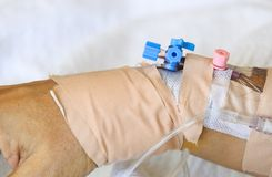 Artery catheterization on patient arm Royalty Free Stock Photos