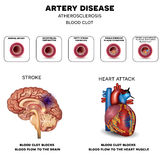 Artery disease, Atherosclerosis. Stroke and Heart attack. Fatty plaque developing on the inside of the artery, at the end the artery is narrowed and blood clot Stock Image