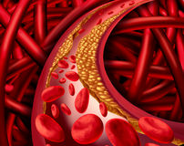 Artery Disease. Artery problem with clogged arteries and atherosclerosis disease medical concept with a three dimensional human cardiovascular system with blood Royalty Free Stock Image