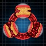 Artery Disease Symptoms Diagram Royalty Free Stock Photography