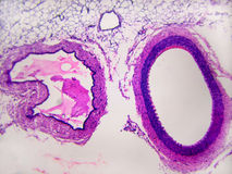 Artery MP. Educational microscopic. A cross section of both an artery and vein showing differences stock images