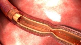 Artery Spasm Stock Photo