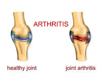 ARTHRITE COMMUNE Image stock