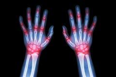 Arthrite de rhumatisme articulaire, de goutte (rayon X de film les deux mains d'enfant avec l'arthrite commune multiple) (médical Photographie stock