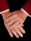 Arthritic-Hände stockbild