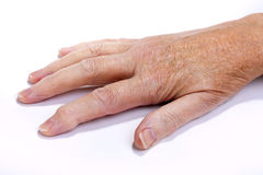 Arthritic Hand. Older senior womans arthritic hand isolated against white background Stock Photography
