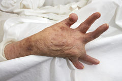 Arthritic Hand Royalty Free Stock Images