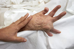 Arthritic Hand Royalty Free Stock Photography