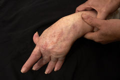 Arthritic Hand Stock Photography