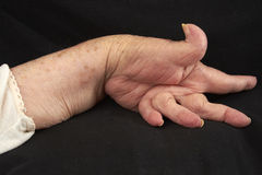 Arthritic Hand Royalty Free Stock Photo