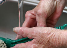 Arthritic hands washing dishes. Hand of a senior woman with severe rheumatoid arthritis washing the dishes Stock Photo