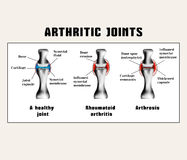 Arthritic joins (rheumatoid arthritis, arthrosis (osteoarthritis)). Stock Photo