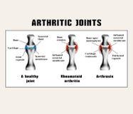 Arthritic joins (rheumatoid arthritis, arthrosis (osteoarthritis)). Stock Photo
