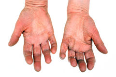 Arthritic old hands Royalty Free Stock Image