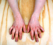 Arthritic old hands Royalty Free Stock Photo