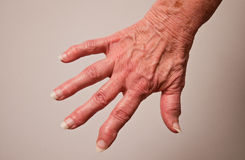 Arthritis. The hand of an elderly woman with arthritis stock images