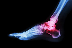 Arthritis at ankle joint (Gout , Rheumatoid arthritis) Stock Photography