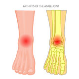 Arthritis of the ankle joint Stock Images