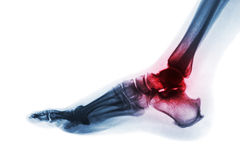 Arthritis of ankle . X-ray of foot . Lateral view . Invert color style . Gout or Rheumatoid concept Royalty Free Stock Photos
