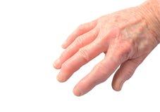 Arthritis in der Hand Lizenzfreie Stockfotografie