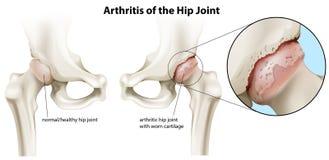 Arthritis des Hüftgelenks stock abbildung