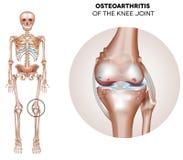 Arthritis des Kniegelenks stock abbildung