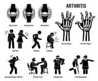 Arthritis, Gelenkschmerzen und Gelenk-Krankheits-Ikonen vektor abbildung