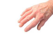 Arthritis in hand. Close up of womans hand showing the deformities of degenerative arthritis isolated on a white background using clipping path medical and royalty free stock photography