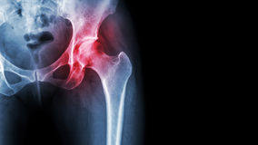 Arthritis at hip joint . Film x-ray show inflamed of hip joint and blank area at right side . Avascular necrosis concept.  royalty free stock image