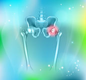 Arthritis of the hip joint Royalty Free Stock Image