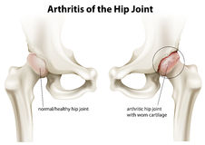 Arthritis of the hip joint. Illustration showing the arthritis of the hip joint on a white background Royalty Free Stock Photography
