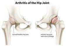 Arthritis of the hip joint stock illustration