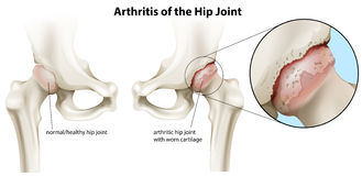 Arthritis of the hip joint. Illustration of the arthritis of the hip joint on a white background Royalty Free Stock Photos