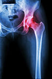 Arthritis at hip joint. ( X-ray pelvis & hip joint ) , ( Gout , Rheumatoid royalty free stock photo