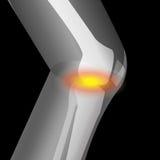 Arthritis im Knie, Schmerz des Knies, leiden unter Knie lizenzfreie abbildung