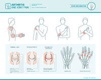 Arthritis and joint pain Stock Photo