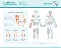 Arthritis and joint pain infographic. Rheumatoid arthritis, osteoarthritis and joint pain infographic with inflammation spots and anatomical illustration vector illustration