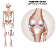 Arthritis of the knee joint Royalty Free Stock Images