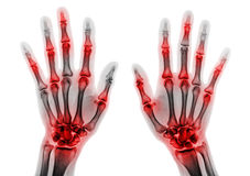 Arthritis multiple joint of fingers . Film x-ray of both hands and wrists.  Stock Image