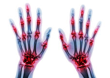 Arthritis multiple joint of fingers . Film x-ray of both hands and wrists.  Stock Images