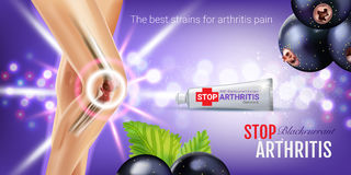 Arthritis Pain Relief Ointment ads. Vector 3d Illustration with Tube cream with blackcurrant extract. Horizontal banner with product`s package Stock Photo