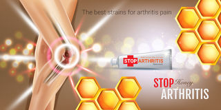 Arthritis Pain Relief Ointment ads. Vector 3d Illustration with Tube cream with honey extract. Royalty Free Stock Image