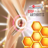 Arthritis Pain Relief Ointment ads. Vector 3d Illustration with Tube cream with honey extract. Poster with product`s package Royalty Free Stock Image