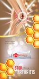 Arthritis Pain Relief Ointment ads. Vector 3d Illustration with Tube cream with honey extract. Royalty Free Stock Images