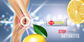 Arthritis Pain Relief Ointment ads. Vector 3d Illustration with Tube cream and lemon extract. Royalty Free Stock Photos