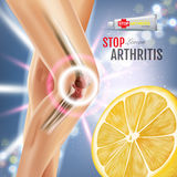Arthritis Pain Relief Ointment ads. Vector 3d Illustration with Tube cream with lemon extract. Royalty Free Stock Photography
