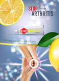 Arthritis Pain Relief Ointment ads. Vector 3d Illustration with Tube cream with lemon extract. Royalty Free Stock Photo