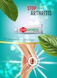 Arthritis Pain Relief Ointment ads. Vector 3d Illustration with Tube cream with peppermint extract. Stock Photo