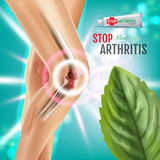 Arthritis Pain Relief Ointment ads. Vector 3d Illustration with Tube cream with peppermint extract. Royalty Free Stock Images