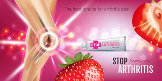 Arthritis Pain Relief Ointment ads. Vector 3d Illustration with Tube cream with strawberry extract. Royalty Free Stock Photography